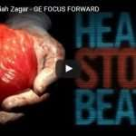 Meet The First Heartless Man Who Is Able To Live Without A Heartbeat (Graphic Content)