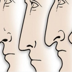 Here's What The Shape Of Your Nose Reveals About Your Personality